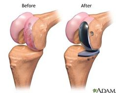 Partial knee replacement surgery only replaces the damaged cartilage in an arthritic knee instead of all of the knee cartilage. It has a number of benefits over total knee replacement surgery, . Partial Knee Replacement, Knee Replacement Surgery, Joint Replacement, Knee Osteoarthritis, Knee Exercises, Knee Surgery, Surgery Recovery, Best Doctors, Knee Pain