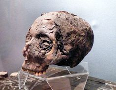"The Museum of Witchcraft, Boscastle, United Kingdom. This is the skull of Joan Wytte, she was born in 1775 in Bodmin, Cornwall. She was sometimes called the ""Fighting Fairy Woman"" or the ""Wytte (White) Witch"". Her bones were disinterred and used for séances and various pranks, then later displayed at the Witchcraft Museum in Boscastle, Cornwall. In 1990 the museum was put in the hands of Graham King, who organized a burial for the skeleton of Joan Wytte."