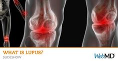 Do you know the telltale signs of #lupus? See pictures. http://wb.md/1qFXGy3