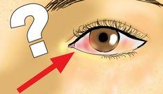Desprendimiento de retina qué es, causas y cómo evitarlo.El desprendimiento de retina es una condición grave que debe tratarse a la brevedad posible para evitar posibles consecuencias irreversibles a la vista.