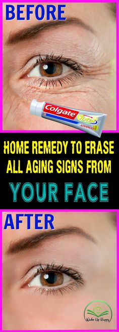 Home Remedy To Erase All Aging Signs From Your Face #face #signs #aging #homeremedies #homeremedy