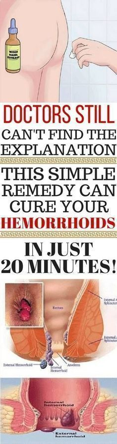 Hemorrhoids are a rather annoying and painful disease, as it develops in an area where it is not comfortable to have some drawback, as is the anus. Hemorrhoids occur when the veins and vessels arou… Allergy Remedies, Herbal Remedies, Health Remedies, Home Remedies, Psoriasis Remedies, Health And Beauty Tips, Health And Wellness, Health Fitness, Health Diet