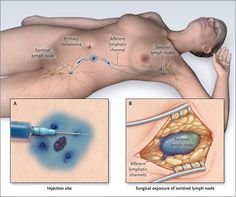 Sentinel Lymph Node in Melanoma