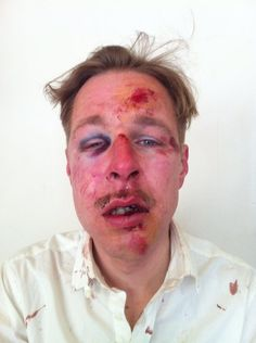 """It's the face of Homophobia,"""" is a quote taken from the man in the photo. His injuries are a result from a street protest in France over Gay marriage. Paris Attack, Lgbt News, Homo, Gay Couple, Atheist, Civil Rights, Human Rights, Lgbt Rights, Social Justice"""