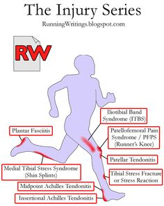 Common Running Injuries Explained