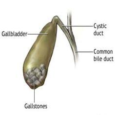 Best Diet Tips For Gallstones