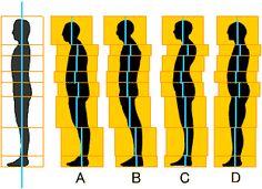 歪んだ姿勢のパターン