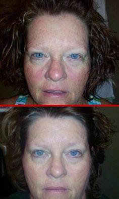 "Shelly says:  ""Ok Facebook peeps...here are my 2 month results. 6 weeks on Redefine a.m. and p.m. with Amp MD roller at night. Then 2 weeks on Reverse in the morning and Redefine at night with Amp MD roller. At the one month mark I added the multifunction eye cream. I am so happy with my results. Love, love, love Rodan + Fields products and this awesome company. Now I have great skin and I have money in my pocket!! What a win win!!""  Want your BEST skin? YOU'RE worth it! Message me!"