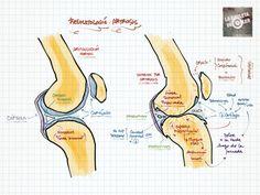 La Chuleta de Osler: Reumatología: Cambios articulares por artrosis vs. artritis