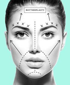 El Face Lift o Ritidectomia. Arrugas y flacidez son restituidas por medio de incisiones discretamente localizadas, permitiendo excelentes resultados.