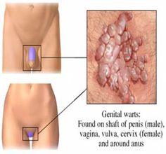 How to prevent genital warts