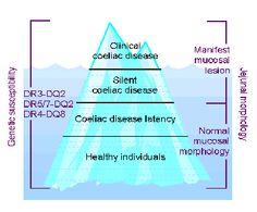 One form of the Celiac Pyramid.
