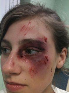 Makeup class! #Bruises