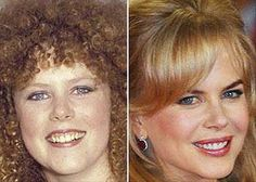 Nicole Kidman - Before and After - Plastic Surgery Bad Celebrity Plastic Surgery, Celebrity Surgery, Plastic Surgery Gone Wrong, Nicole Kidman, Celebrities Before And After, Celebrities Then And Now, Celebs Without Makeup, Nose Surgery, Under The Knife