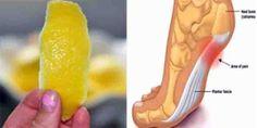 een schil van een citroen