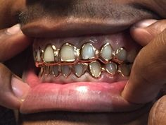 Custom single/set open face Grillz United Kingdom - Silver, , Gold Any Tooth **Perfect Fit** Open Face Grillz, Girls With Grills, Girl Grillz, Silver Grillz, Tooth Gem, Diamond Teeth, Grills Teeth, Gold Grill, Gold Teeth