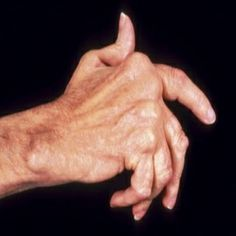 Creative Treatment Options For Arthritis Of The Hands