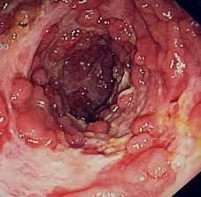 Crohns Disease Homeopathic Remedies Homeopathic Remedies, Health Remedies, Natural Remedies, Ulcerative Colitis, Autoimmune Disease, Crohn's Disease, Disease Symptoms, Blue Waffle Disease, Crohns Awareness