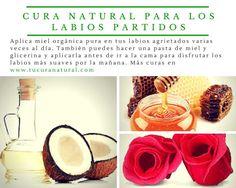 cura natural para labios partidos: el azúcar, los pepinos, la crema de leche y el aceite de coco aliviarán tu problema
