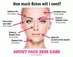 The average amount of Botox units needed, per facial area. #Botox