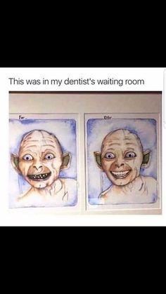 He looks even creepier with teeth Dental Humor, Dental Teeth, Dental Art, Dental Hygiene, Dentist Quotes, Funny Dentist, C'est Bon, Teeth Funny, Funny Pins