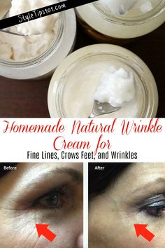 Best anti wrinkle day cream ulta skin care products,home remedies for lines on face organic anti aging cream,home remedies for healthy skin natural face cream for sensitive skin. Anti Aging Cream, Anti Aging Skin Care, Nail Polish, Crows Feet, Homemade Skin Care, Homemade Eye Cream, Homemade Products, Prevent Wrinkles, Skin Cream