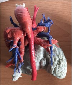 Heart Transplant Surgery Performed With Help of Color Coded 3D Printed Model http://3dprint.com/88586/color-coded-heart-model/
