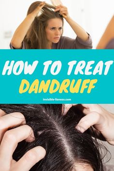 Wondering how to treat dandruff? Here you'll learn everything you need to know about how to get rid of dandruff, including tips for remedies! Long Hair Tips, Grow Long Hair, Easy Hairstyles For Long Hair, Diy Hairstyles, Healthy Hair Tips, Healthy Hair Growth, Hair Growth Tips, Vitamins For Hair Growth, Hair Vitamins