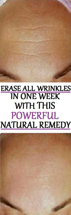 The aging process causes wrinkles which damage our self-esteem. The market offers many products that promise to eliminate all the wrinkles, but, indeed, they fail to do so. Luckily, today's mask will help you to get rid of the the wrinkles in a week easily.