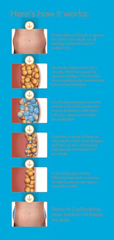 CoolSculpting Before and After CoolSculpting, a great alternative to liposuction