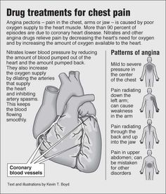 angina pectoris care plan 2 results found for angina-pectoris treatment name effectiveness reviews  or change any prescribed part of your health care plan or treatment and to determine what course of therapy is right .