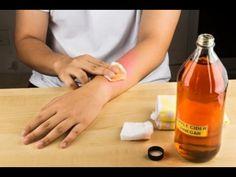 ConsejosdeSalud.info: Haga esto para eliminar esos feos granitos de los brazos en solo 3 días