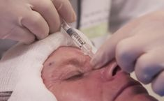 Not happy with your nose? Non surgical rhinoplasty involves injecting hyaluronic acid (volumiser) together with a specially designed PDO thread (the Broom) to help with minor alignments & bumps. Click to watch a treatment in action. #SkinRenewalSA #nosejob #nonsurgical #injectables #nose #nosejob #rhinoplasty #nosebridge #injectables #DermalVolumisers #volumisers #HA # threads #correct #reshape #aesthetics #medicalaesthetics Medical Aesthetics, Aesthetic Clinic, Rhinoplasty, Hyaluronic Acid, Action, Skin Care, Watch, Happy, Group Action
