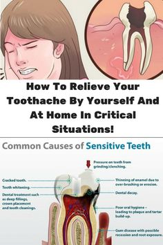 Toothaches are the worst, and damaged roots can be extremely painful. What is worse, this pain can last for days.