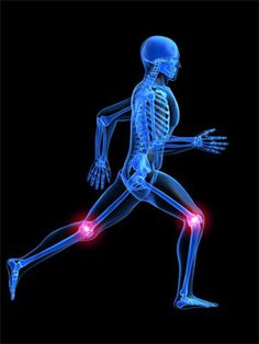 "Ejercicios de alto impacto favorecen la Osteoartritis (Osteoarthritis: ""high impact activity potentially a higher risk of osteoarthritis, on the other hand light exercise may protect against the onset of the disease"")"