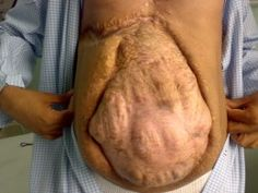 Hernia pictures