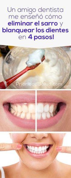 Un amigo dentista me enseñó cómo eliminar el sarro de los dientes y blanquearlos en 4 sencillos pasos.