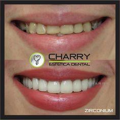 "59 Likes, 5 Comments - CHARRY Estética Dental (@m.charry) on Instagram: ""@kza985 new smile with zirconium crowns  Nueva sonrisa con coronas de zirconio  #SonrisaCharry…"""