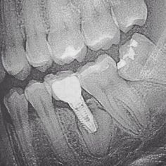 Dentaltown - Can you figure out what went wrong with the placement of this dental implant?