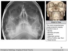 Imaging of Facial Trauma Part Introduction Rathachai Kaewlai, MD Spec… Bone Fracture, Sphenoid Bone, Sagittal Plane, Radiation Dose, Maxillary Sinus, Nasal Septum, Soft Tissue Injury