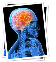 Revertir El Alzheimer™   El Revolucionario Metodo Natural Para Revertir el Alzheimer