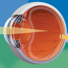 Home Remedies For Myopia - Natural Treatments & Cure For Myopia | Search Herbal Remedy