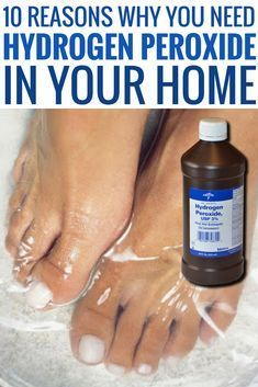 The uses of Hydrogen peroxide are not just limited to disinfectants, but it can be used in several other ways to benefit yourself. Here are 10 simple life hacks that you should remember.Excellent DIY hacks are offered on our internet site. look at th Household Cleaning Tips, House Cleaning Tips, Cleaning Hacks, Cleaning Carpets, Cleaning Solutions, Deep Cleaning, Household Products, Household Cleaners, Spring Cleaning
