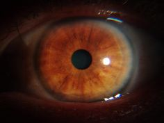 awesome Cancer Studies -iridology case Check more at http://www.iriscope.org/cancer-studies-iridology-case/
