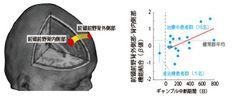 ギャンブル依存症ではリスクに対する態度を切り替える能力に障害 - 京大   マイナビニュース   fMRIで患者の脳の活動状態を調べたところ、背外側前頭前野と内側前頭前野の結合が弱い患者ほど、ギャンブルを絶っている期間が短く、また低ノルマ条件でハイリスク・ハイリターンのギャンブルを選択する傾向が強いことが明らかになった。