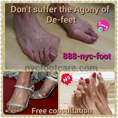 Don't suffer the agony of de-feet Call #NYC FOOTCARE 888-nyc-foot / nycfootcare.com / 212.385.2400 #nycfootcare #bunion #nypodiatrist #hammertoes #bunions #nj #feet #footcare #bunion #hammertoe #podiatry #podiatrist #foot #footpain #downtown...