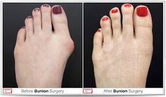 At Foot First Podiatry Centers, A Foot & Ankle Center, our #bunion surgeries are different than traditional methods in that we employ minimally invasive incisions as well as the #SwissCompressionTechnique. All three of our doctors use the Swiss Compression Technique for correcting #bunions. The differences, both during surgery and post-operation, are significant for Foot First patients. Please call 847-352-9221 to schedule a consultation today.