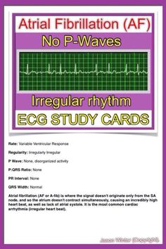 ECG study cards Atrial Fibrillation no p-waves Nursing School Tips, Nursing Notes, Nursing Tips, Rn Nurse, Nurse Life, Nurse Stuff, Cardiac Nursing, Nursing Mnemonics, Nursing Assessment