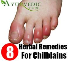 Natural Herbal Supplements | AyurvedicCure.com - https://www.ayurvediccure.com/top-herbal-remedies-for-chilblains/