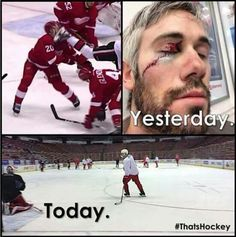 Tuesday OTT @ DET - 1 minute of play - Drew Miller gets a skate to the face off a faceoff. This is Hockey! - Skates do some horrible damage. I saw this live yesterday and couldn't even watch the replay. His visor probably saved his eye. Funny Hockey Memes, Hockey Quotes, Funny Memes, Hockey Baby, Field Hockey, Bruins Hockey, Montreal Canadiens, Hockey Girlfriend, Nhl Highlights